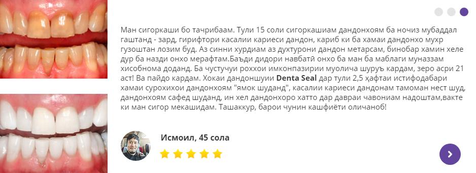 Denta Seal андешаи мутахассис